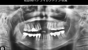 某審美歯科にて治療してから上手く、噛めない(66歳・女性)