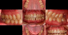 歯周病治療×矯正治療(40歳・男性)
