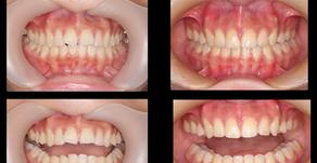 噛み合わせを考えた 抜歯矯正の症例(船橋)