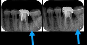 歯を保存する歯周組織再生療法 骨の再生(歯槽骨の再生)船橋