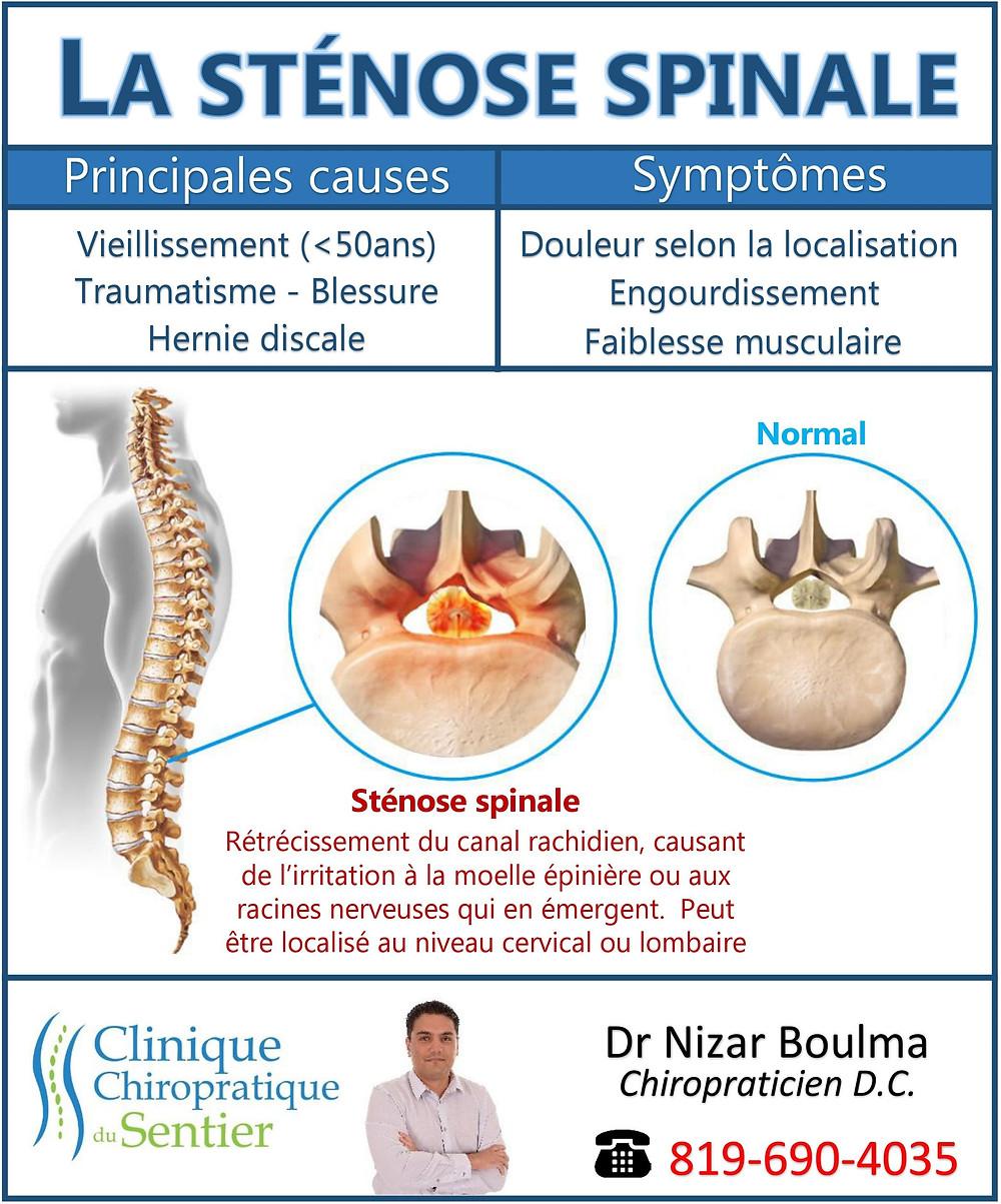 La sténose spinale en un coup d'oeil