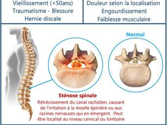 La sténose spinale
