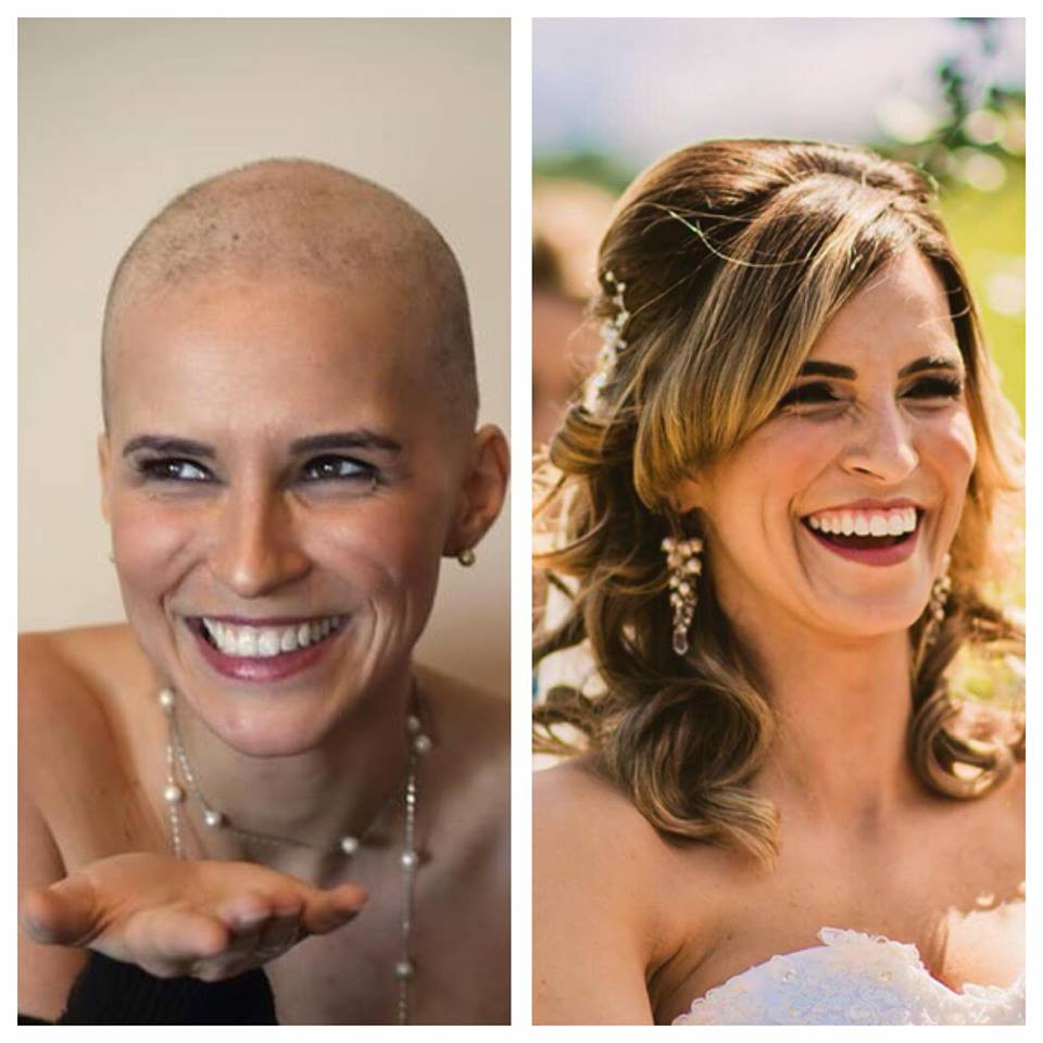 beauty tip #11: post-chemo hair growth