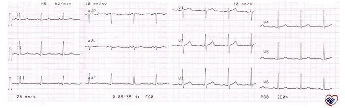 Electrocardiograma-Normal.jpg
