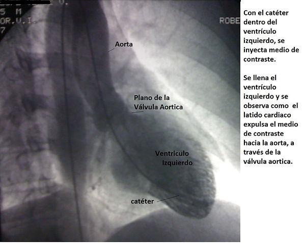 ventriculo-y-aorta.jpg