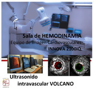 ULTRASONIDO CORONARIO INTRAVASCULAR