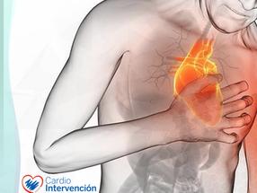 Los 10 mandamientos de las nuevas guías de infarto con ST de la ESC