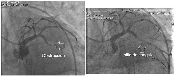Trombo-arteria-circunfleja.jpg