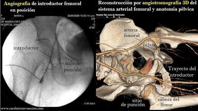 RETIRO DE INTRODUCTOR (VIA FEMORAL Y RADIAL)