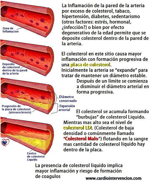 ateroesclerosis-4.jpg