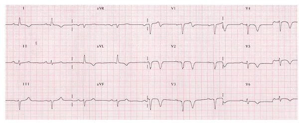 Electrocardiograma-IMESTAS.jpg