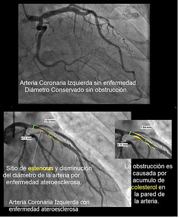 Ateroesclerosis-coronaria.png