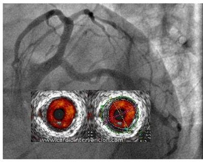Cateterismo-mas-IVU-coronario.jpg