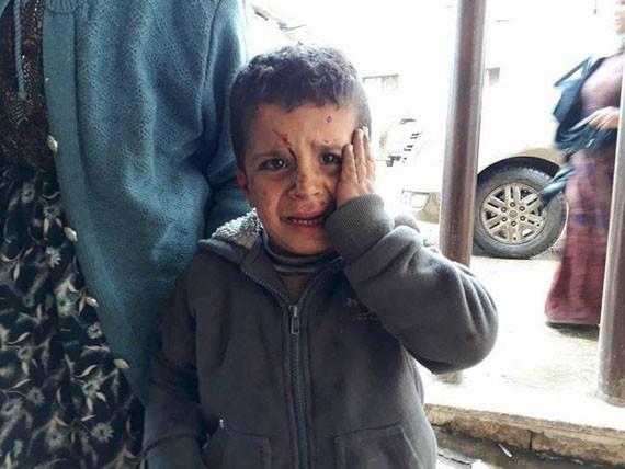 Dit Syrische jongetje heeft net gehoord dat zijn ouders de aanval van Turkije op Afrin niet hebben overleefd.