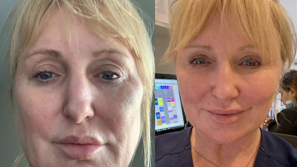 Face And Body Lift -  For everyone