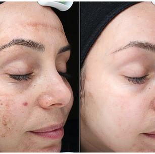 5 Precision plus treatment over 6 months