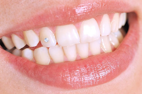 Tooth Gems Swarovski diamonds