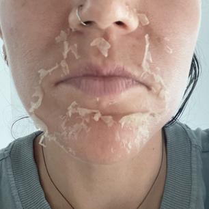 Day 3 Peeling