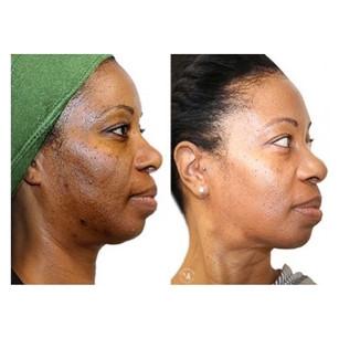 Hyperpigmentation correction- 3 peels