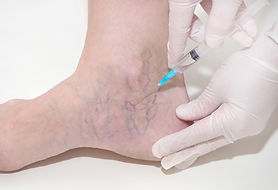 Spider veins on the womans legs, sclerot