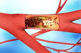 peripheral_artery_disease_500800126.jpg