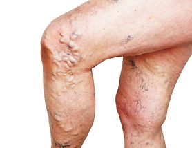 Legs of old woman with varicose veins on