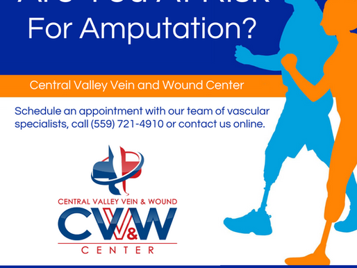 Central Valley Vein and Wound Center Raises Awareness for Amputation Prevention Month