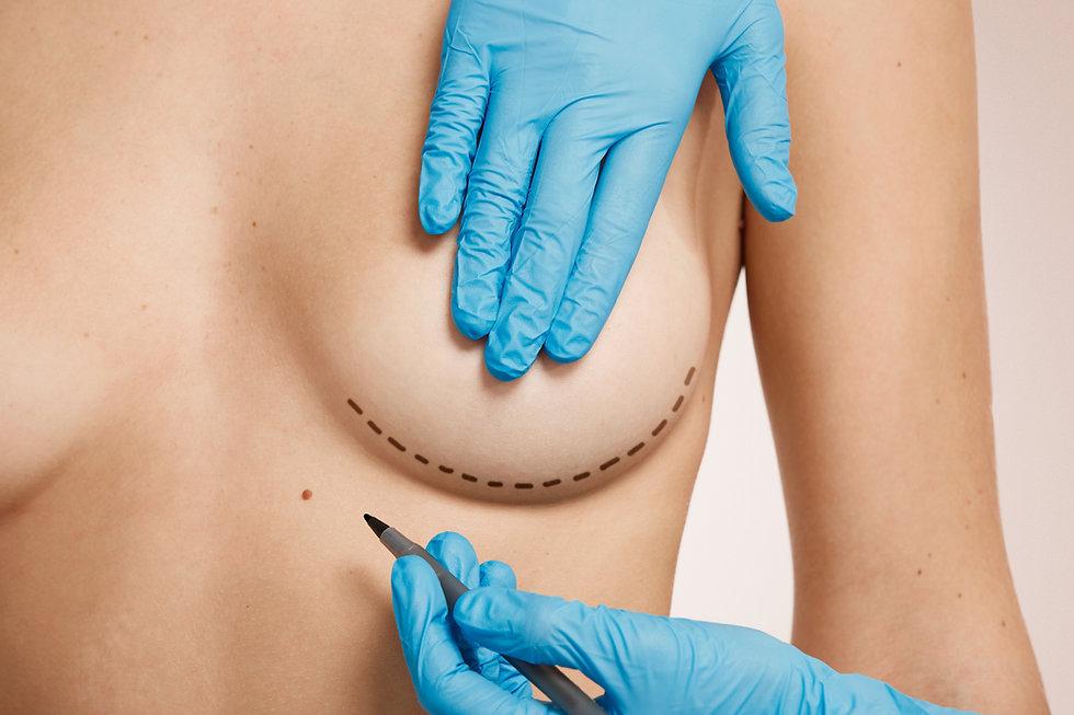 cirurgia plastica brasilia 6.jpg