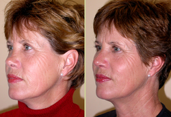 Restore dorsal profile