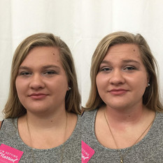 Double-Chin-Before-After-3.jpg