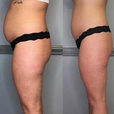 3-slimming-3-toning-sessions-give-credit-to-_tnhydration-1.jpg