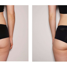 Female-Butt-Toning-Before-After-scaled.jpg