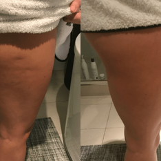 Leg-Toning-Before-After.png