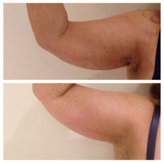 Arm-Before-After.jpg
