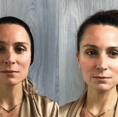 Facial-Before-After.png