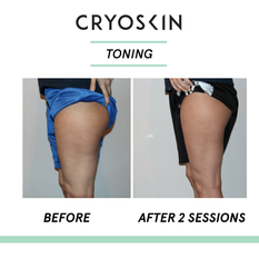 Legs-Toning-Before-After-1.png