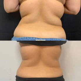 2-slimming-give-photo-credit-to-_core_nutrition_wellness.jpg