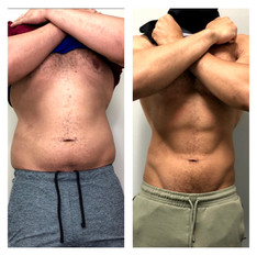 19-slimming-over-1-year-_thrivecryostudio.jpg