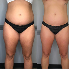 3-slimming-3-toning-sessions-give-credit-to-_thrivecryostudio-1.jpg
