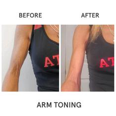 Arm-Toning-BA.png