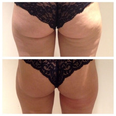 Back-of-Thigh-Toning-Before-After.jpg