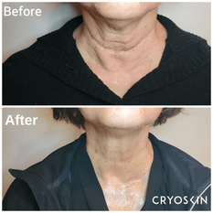 CryoFacial-neck-tightening-photo-credit-_aesthetics_by_sophia.png