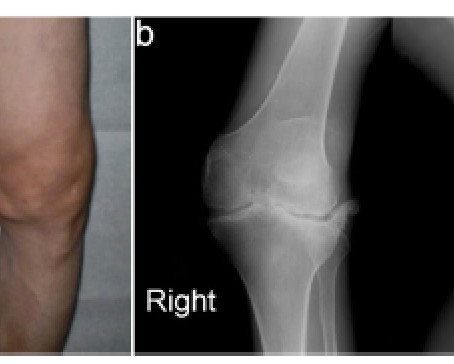 Our recent publication on X-ray analysis of Kashin-Beck disease patients