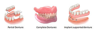 Providing all types of dentures.