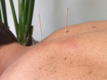 Dry Needling - wat doet het precies?