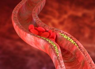 Холестерин и низкоуглеводные диеты.