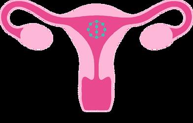 livmoder med pärlspiral