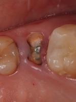 Имплантация зуба одномоментная.