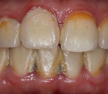 Профессиональная гигиена полости рта. До