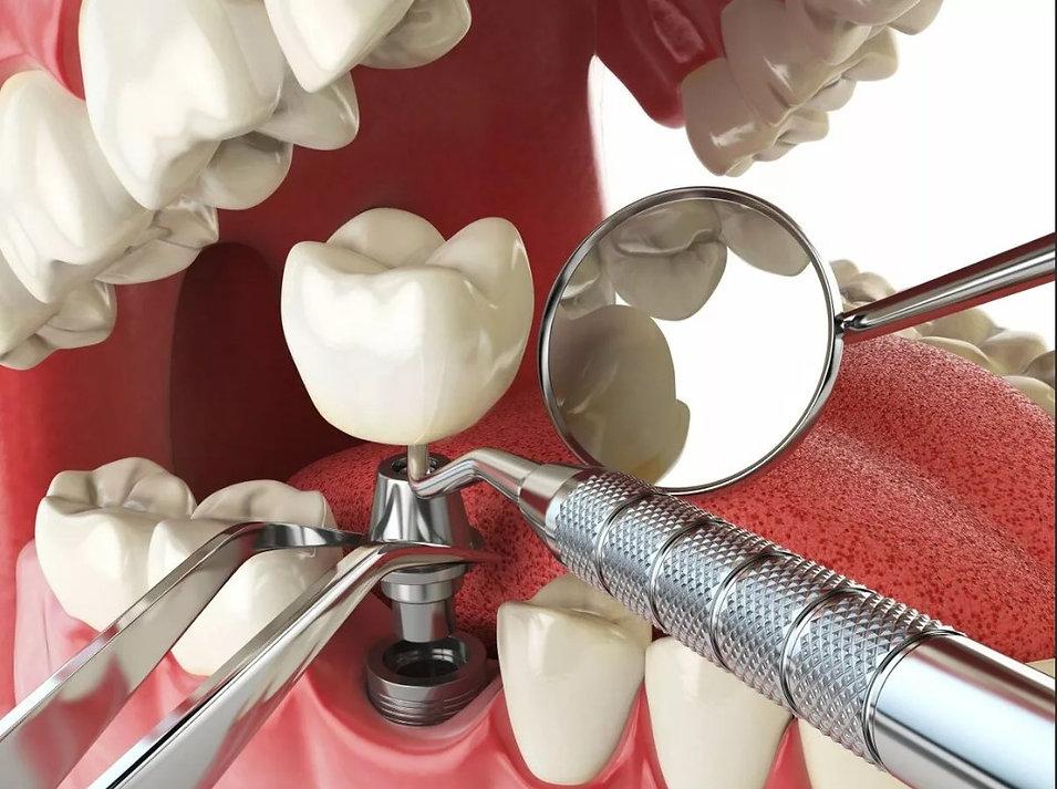 Имплантация в стоматологии.jpg